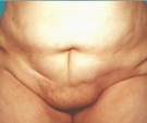 Abdominoplasty - 48 years old patient, abdominoplasty - After 12 months