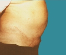 Abdominoplasty - 53 years old patient, abdominoplasty - After 6 months
