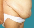 Abdominoplasty - 48 years old patient, abdominoplasty - Before