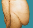 Abdominoplasty - 53 years old patient, abdominoplasty - Before