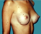 Breast enlargement - 23 years old patient, gel-filled implants, 230 cm3, submuscular position, inframammary approach - After 6 months