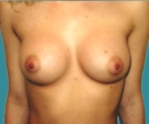 Breast enlargement - 23 years old patient, gel-filled implants, 265 cm3, submuscular position, inframammary approach - After 3 months
