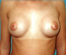 Breast enlargement - 24 years old patient, gel-filled implants, 295 cm3, submuscular position, periareolar approach - After 3 months