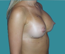 Breast enlargement - 29 years old patient, asymmetrical implants 295 cm3 right breast, 280 cm3 left breast, submuscular position, inframammary approach - After 3 months