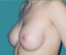 Breast enlargement - Breast enlargement with Matrix 295 implants - After