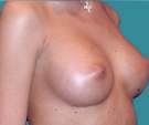 Breast enlargement - Breast enlargement with Mentor 315 implants - After
