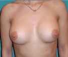 Breast enlargement - Breast enlargement with Matrix 320 implants - After
