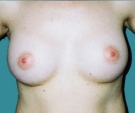 Breast enlargement - Breast enlargement with Matrix 280 implants - After