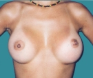 Breast enlargement - Breast enlargement with Mentor 330 implants - After