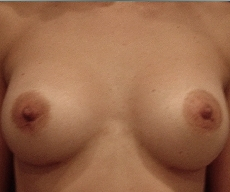 Breast enlargement - Breast enlargement with Matrix 335 implants - After 6 months