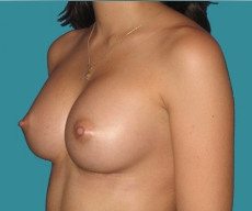 Breast enlargement - 27 years old patient, Matrix implants 320 cm3 left breast, 335 right breast - After 1 month