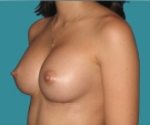 Breast enlargement - 27 years old patient, Matrix implants 320 cm3 left breast, 335 right breast - After 1 months