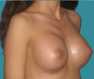 Breast enlargement - 28 years old patient, Matrix implants 320 cm3 left breast, 335 right breast - After 2 weeks