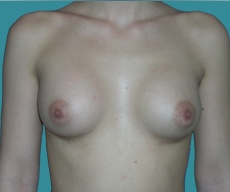Breast enlargement - 20 years old patient, implants Matrix 295 cm3, submuscular position, inframammary approach - After 1 month