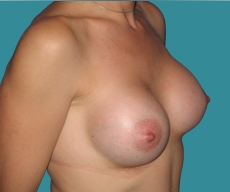 Breast enlargement - 32 years old patient, round Mentor implants 350 cm3 left breast, 325 right breast - After 8 months