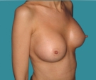 Breast enlargement - 39 years old patient, Matrix implants 295 cm3 left breast, 280 right breast - After 10 months