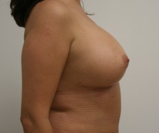 Breast enlargement - Pacienta, proteze Mentor anatomice 395cc, subpectoral - After 1 month