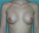 Breast enlargement - 20 years old patient, implants Matrix 295 cm3, submuscular position, inframammary approach - After 1 months
