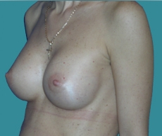 Breast enlargement - 22 years old patient, implants Mentor 270 cm3, submuscular position, inframammary approach - After 2 months