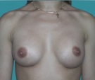 Breast enlargement - 23 years old patient, implants Mentor 315 cm3, submuscular position, inframammary approach - After 4 months