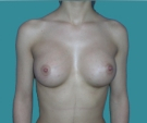 Breast enlargement - 20 years old patient, implants Mentor 350 cm3, submuscular position, inframammary approach - After 3 months