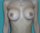 Breast enlargement - 22 years old patient, implants Mentor 270 cm3, submuscular position, inframammary approach - After 3 months