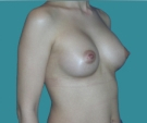Breast enlargement - 26 years old patient, round implants 350 cm3, submuscular position, inframammary approach - After 1 months