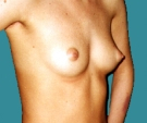 Breast enlargement - 23 years old patient, gel-filled implants, 265 cm3, submuscular position, inframammary approach - Before