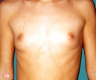 Breast enlargement - 24 years old patient, gel-filled implants, 295 cm3, submuscular position, periareolar approach - Before