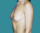 Breast enlargement - 25 years old patient, anatomical implants 295 cm3, submuscular position, inframammary approach - Before