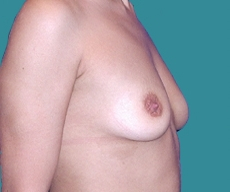 Breast enlargement - Breast enlargement with Mentor 350 implants - After