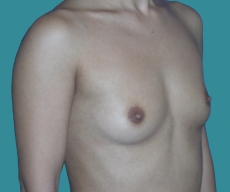 Breast enlargement - 23 years old patient, implants Matrix 295 cm3, submuscular position, inframammary approach - After 4 months
