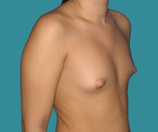 Breast enlargement - 20 years old patient, round Mentor implants 325 cm3 left breast, 300 right breast - After 3 months