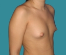 Breast enlargement - 20 years old patient, round Mentor implants 325 cm3 left breast, 300 right breast - Before