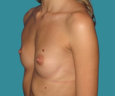Breast enlargement - 24 years old patient, round Mentor implants 250 cm3 left breast, 300 right breast - After 3 months