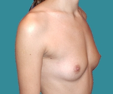 Breast enlargement - 25 years old patient, anatomical Mentor implants 280 cm3 left breast, 315 right breast - After 2 years