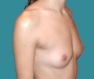 Breast enlargement - 25 years old patient, anatomical Mentor implants 280 cm3 left breast, 315 right breast - Before