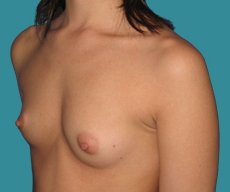 Breast enlargement - 26 years old patient, Matrix implants 280 cm3 left breast, 295 right breast - After 2 months
