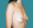 Breast enlargement - 26 years old patient, Matrix implants 335 cm3 left breast, 320 right breast - Before