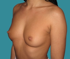 Breast enlargement - 27 years old patient, round Mentor implants 400 cm3 left breast, 375 right breast - After 1 month
