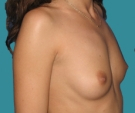 Breast enlargement - 28 years old patient, Matrix implants 320 cm3 left breast, 335 right breast - Before