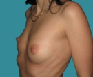 Breast enlargement - 28 years old patient, round Mentor implants 250 cm3 left breast, 400 right breast - Before