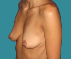 Breast enlargement - 29 years old patient, round Mentor implants 275 cm3 left breast, 250 right breast - After 6 months