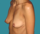 Breast enlargement - 29 years old patient, round Mentor implants 275 cm3 left breast, 250 right breast - Before