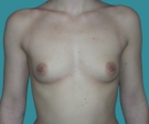 Breast enlargement - 20 years old patient, implants Matrix 295 cm3, submuscular position, inframammary approach - Before