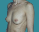 Breast enlargement - 22 years old patient, implants Mentor 270 cm3, submuscular position, inframammary approach - Before