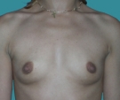 Breast enlargement - 23 years old patient, implants Mentor 315 cm3, submuscular position, inframammary approach - Before