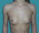 Breast enlargement - 20 years old patient, implants Mentor 350 cm3, submuscular position, inframammary approach - Before