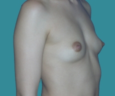 Breast enlargement - 26 years old patient, round implants 350 cm3, submuscular position, inframammary approach - After 1 month