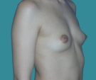 Breast enlargement - 26 years old patient, round implants 350 cm3, submuscular position, inframammary approach - Before